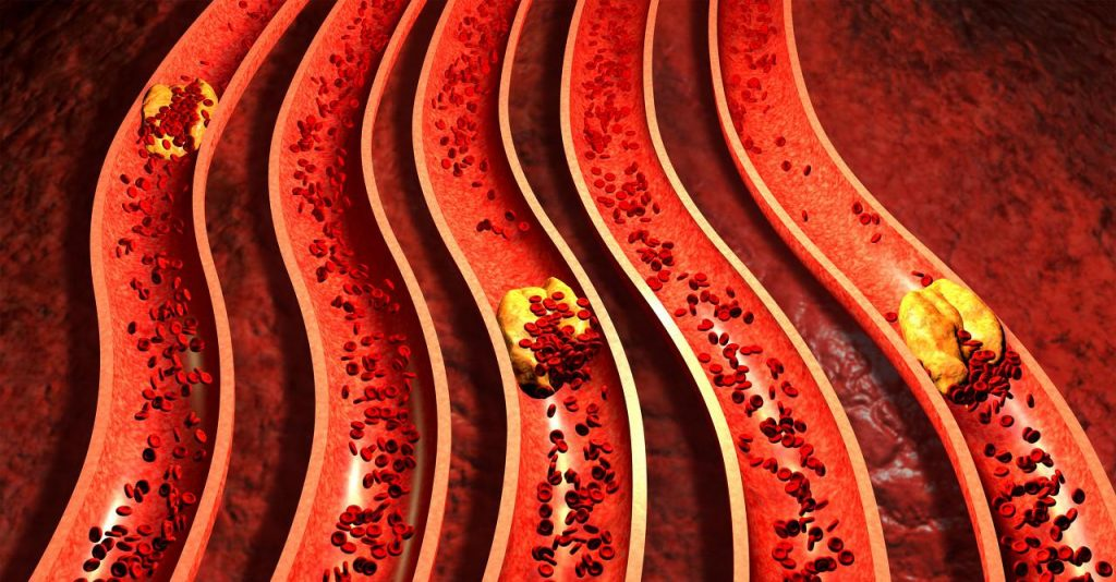 High blood lipids from unhealthy life