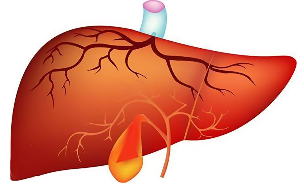 Stem cell therapy treats liver cirrhosis by inhibiting hepatic stellate cells