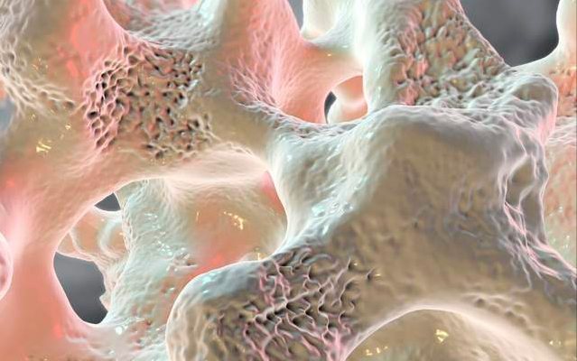 Aalendronate sodium tablets to treat osteoporosis