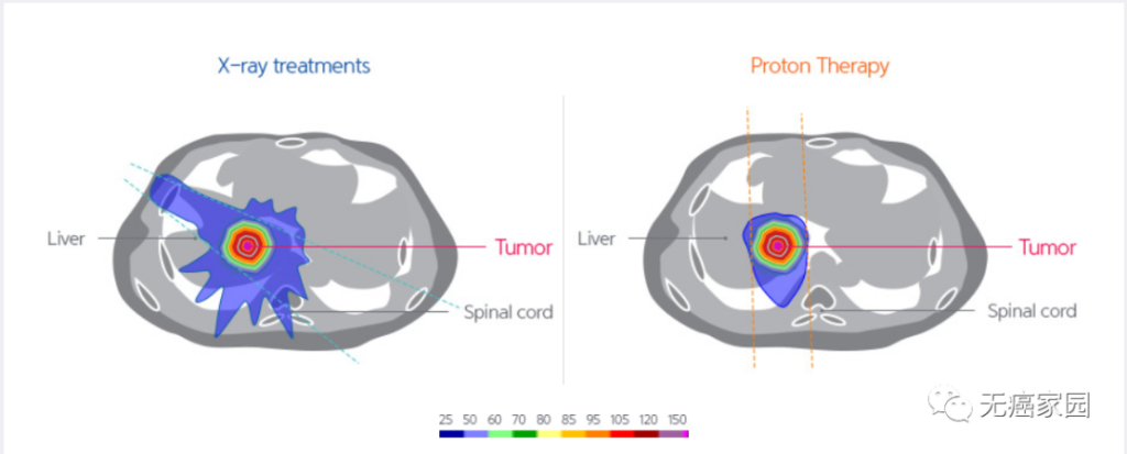 Proton therapy for liver cancer