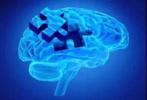 It's not Amyloid β plaquesdoes to cause Alzheimer's disease