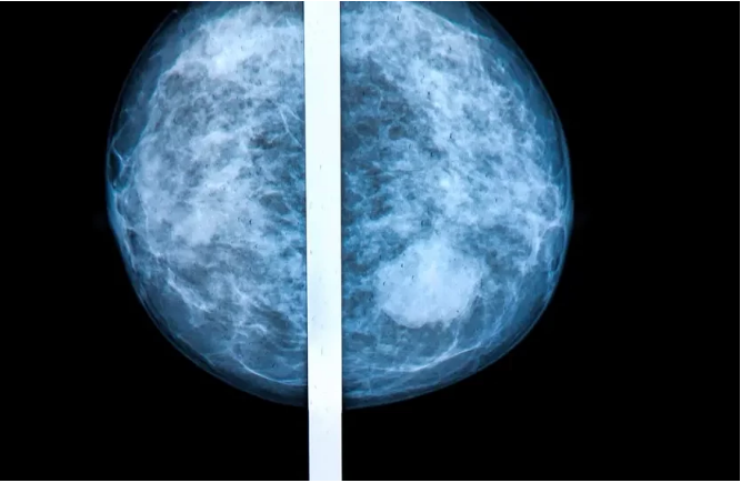 What should Breast cancer patients do after the treatment is over?
