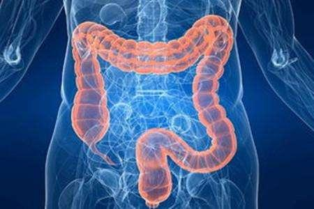 Stem cell treatment for inflammatory bowel disease