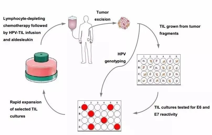 TILs Cell Therapy: An important hope to conquer tumors