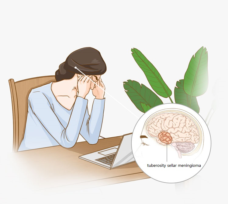 Can tuberosity sellar meningioma cause blindness?