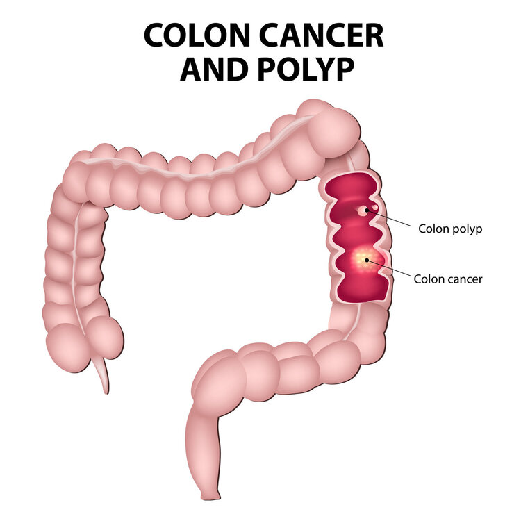 Most bowel cancers are caused by bowel polyps