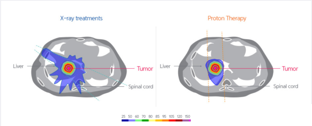 Proton therapy is the preferred choice for certain liver cancers