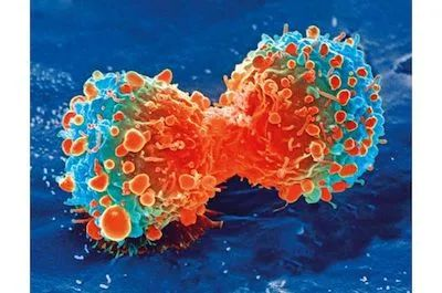 Cell: Engineered immune cells can target and inhibit cancer cell metastasis