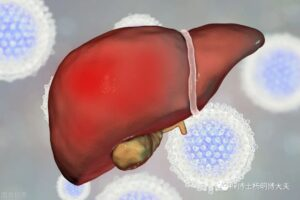 """What is the """"fatty liver"""" that cannot be ignored?"""