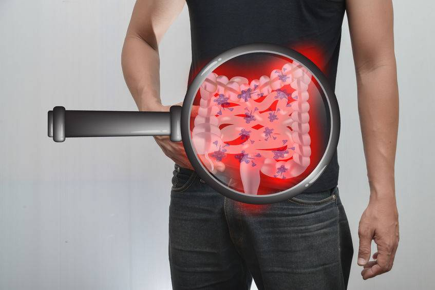 Obesity may be an important cause of rectal cancer
