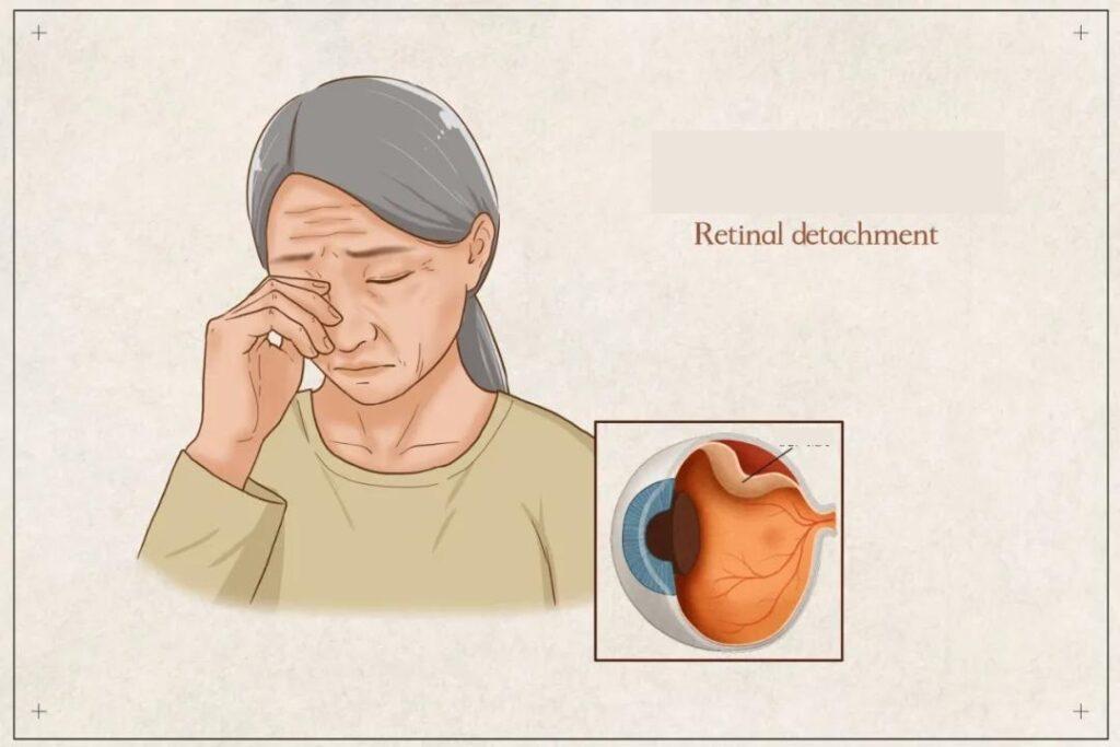 Severe retinal detachment can cause blindness.