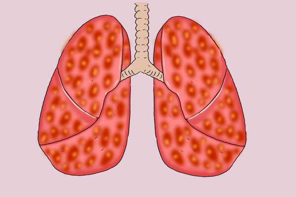 Small cell lung cancer still mainly treated by Chemotherapy and Immunity