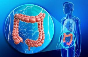 American guidelines adjusted colorectal cancer screening to 45 years old