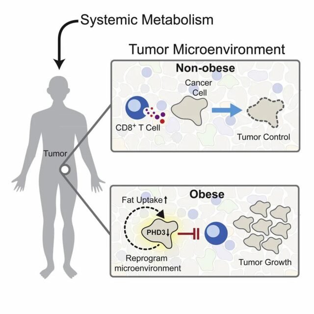 Cell: Obesity suppresses immune cells and accelerates tumor growth