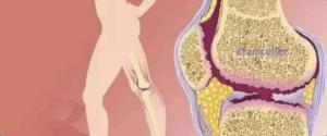 How do stem cells promote tissue repair and regeneration?