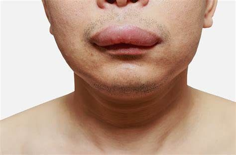 First oral treatment for hereditary angioedema (HAE) was approved in EU!
