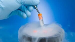 The application and progress of cryopreservation in medicine 