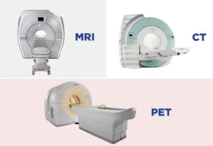 Lung cancer: It is necessary to do PET-MRI examination except PET-CT?