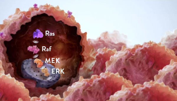 New targeted drugs treat the recurrence of drug resistance in ovarian cancer