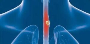 What factors cause esophageal cancer and how to prevent from it?