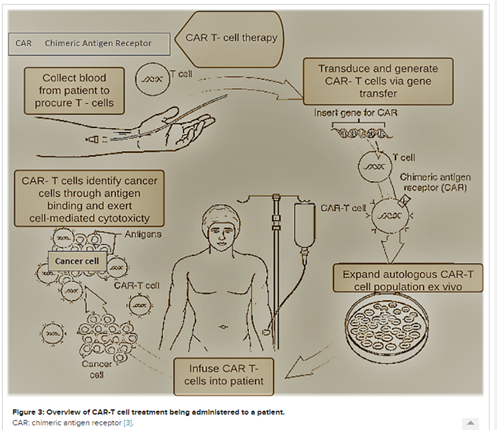 The future of CAR-T cell therapy for hematological malignancies. This article outlines the development status of CAR-T cell therapy