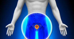 PET imaging agent Pylarify accurately detects prostate cancer