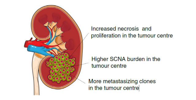 Cancer cells in tumor center are the easiest to spread throughout the body