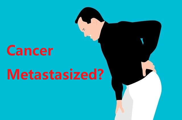 Metastatic cancer: What does it mean if cancers spread and metastasize?