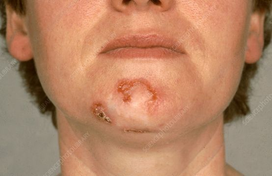 EU approved Libtayo immunotherapy for lung cancer and basal cell carcinoma!