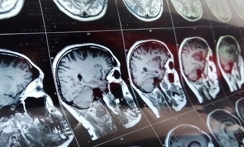 Patient with glioblastoma (GBM) survived 5 years after receving cancer vaccine