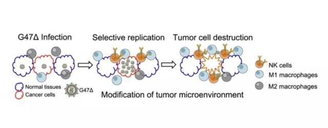 The world first oncolytic virus product for glioma was approved