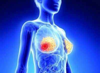 Eli Lilly Verzenio reduces the recurrence risk of breast Cancer by 38.6%!