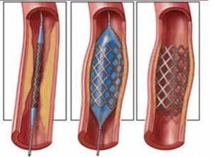 Do you need to put a stent if Cardiovascular stenosis is 75%?