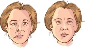 Some people had facial paralysis after receiving mRNA COVID-19 vaccine