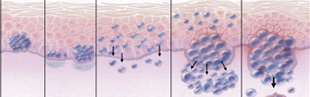 The main molecular mechanism of melanoma and treatment suggestions