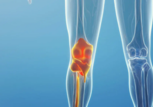 What knowledge should you understand before Joint replacement surgery?