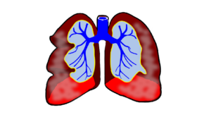 Will a lung cancer patient get the 2nd primary lung cancer again?