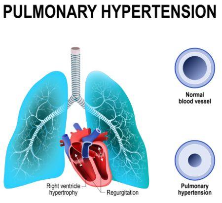 PAH: FDA approved Johnson & Johnson's Uptravi intravenous preparation