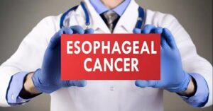 What is early symptoms and prevention strategies of Esophageal cancer?