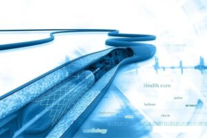 How long can the patient live after heart stent surgery?