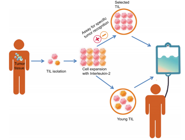 T-cell-based TILs (Tumor Infiltrating Lymphocytes) immunotherapy