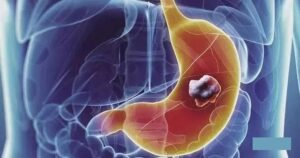 Can patients find early gastric cancer themselves for early treatment?