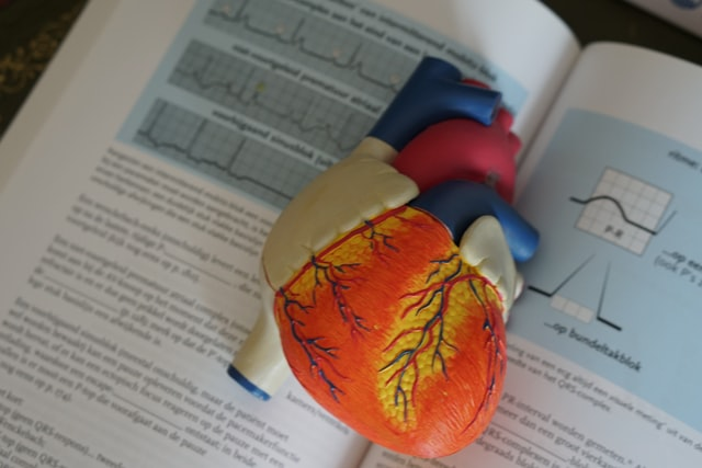 Beta blockers have limited efficacy in idiopathic ventricular premature