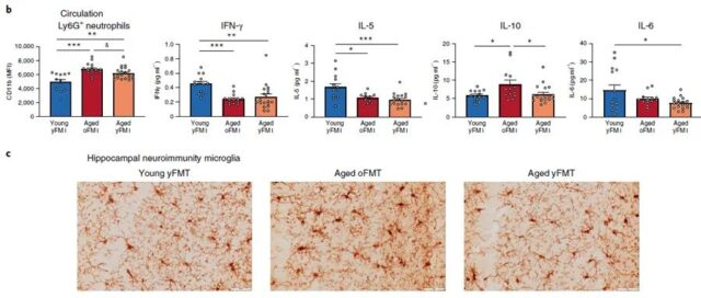Nature: Reverse aging! Fecal transplant can reverse brain aging