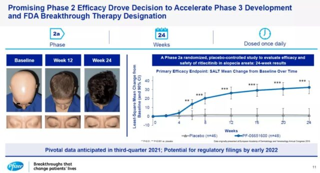 Pfizer Phase 2b/3 trials of Ritlecitinib for  hair loss have outstanding results