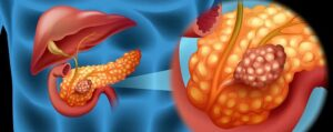 Pancreatic cancer: PD-1+TIGIT+CD40 combination trials are about to start