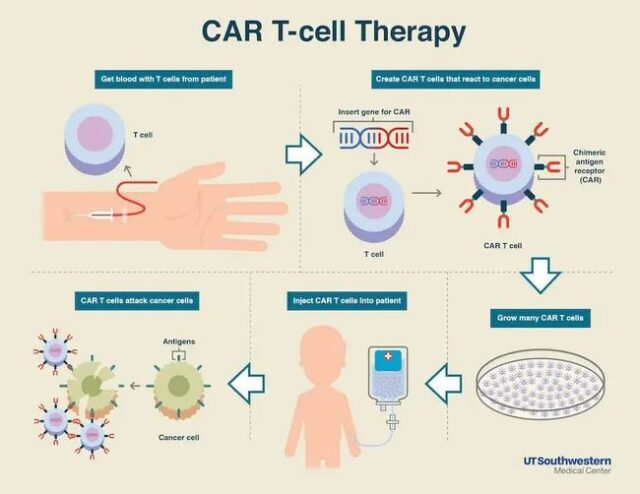 China 1st CAR-T therapy: Patient's cancer cells were cleared in two months