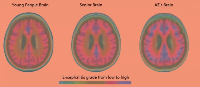 """""""Natural Medicine"""": Neuroinflammation in the brain is the """"real culprit"""" of Alzheimer's disease."""