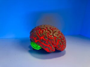 """Neuroinflammation in the brain is the """"real culprit"""" of Alzheimer's disease."""