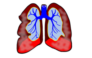 The Lancet: Can low-dose CT screening for lung cancer really effectively reduce mortality?